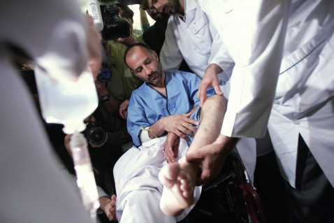 Tehran, IRAN: Iranian diplomat Jalal Sharafi aided by his medical team displays wounds on his ankle at a press conference at the foreign ministry in Tehran, 11 April 2007.