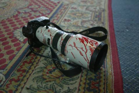 This April 8, 2003 photo of blood on the camera of an injured photographer at Baghdad's Palestine Hotel has become emblematic on the websites of Iraqi organizations concerned with the safety of media workers.
