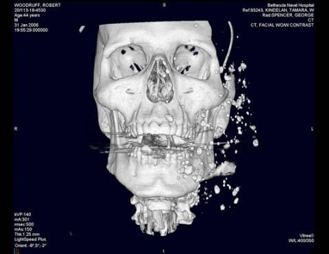 CT scan of Woodruff's skull two days after he was wounded in a bombing in Iraq shows rocks and debris embedded in his face and neck and around his eyes.