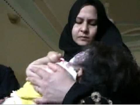 An Iraqi mother from Falluja holds her child, born with a defect in one of her eyes.
